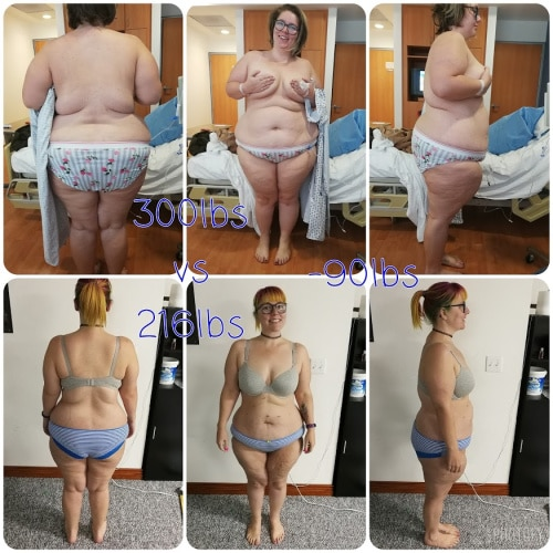 6 Month weight loss surgery