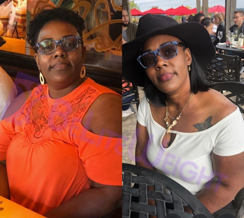gastric sleeve shay 6 month