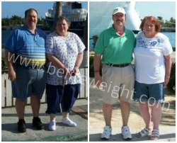Vertical Sleeve Gastrectomy - VSG Success Stories