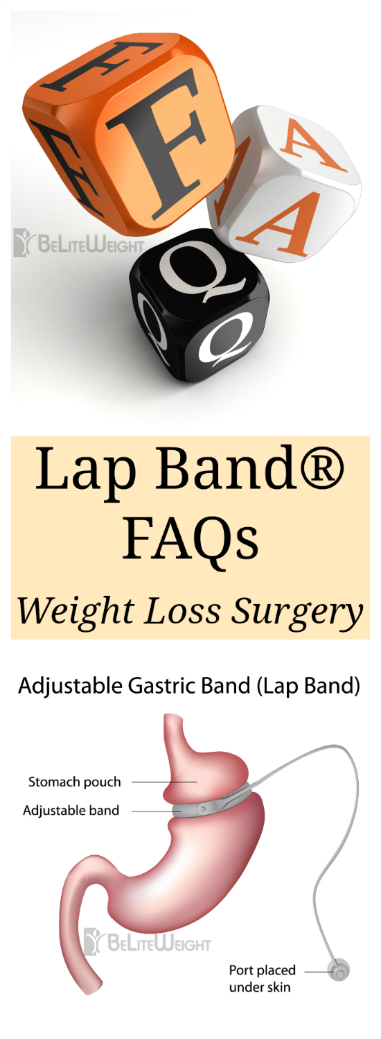 Lap Band FAQs - Gastric Band FAQs