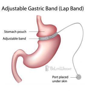 Lap Band - Gastric Band