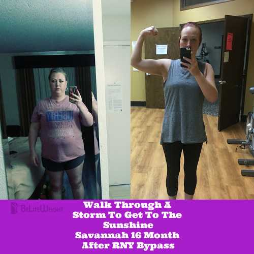 """To say the last year has been easy would be a lie but was gastric bypass worth it? Absolutely! Let me tell you a little bit about my journey…"" A slim and slender figure is everyone's dream. Sometimes, the road to success can be difficult because not only temptations, but also because of many different obstacles. Today, with great admiration, BeLite can tell the story of our patient who, after tedious efforts, found her way to find herself, so that with help our team to be on the better side of life. Dear readers, we invite you to listen to another beautiful story : After the first 6 weeks, I questioned if I did the right thing and even considered having it reversed at my year mark if I wasn't any better. I got really sick, I became unemployed, I missed out on my children's activities and I became even more bed ridden. I was losing weight and that felt great. I found a new doctor when I had had all I could take. She ran blood work and sent me to every specialist that she could think of. I was hospitalized for several weeks and went through every test imaginable. Nothing came up. Everyone would tell me it's a bad reaction to the bypass. I didn't believe that because 10 years prior to my surgery I struggled with the same symptoms so it couldn't be the bypass. I was finally sent to an immunologist and much to my surprise, this was the last place my doctor knew to send me. After this we were at a brick wall. After many blood tests, allergy testing and immune testing we finally have it!!! I was diagnosed one month ago with an immune deficiency. I have probably suffered with this all my life after reviewing my medical history as a child. I was diagnosed with S.A.D. (specific antibody deficiency). My body makes antibodies to fight off infections and bacterias but my antibodies don't work, leaving me with no immune system and vulnerable to recurrent infections. Because of this I have had many many surgeries and almost felt like a pin cushion. Now I have an answer and a treatment. I receive Immunoglobulin infusion therapy 2 times a month. I sit in a small room with an IV hooked up to plasma and I sit for several hours. I just received my first treatment and I feel so great and I am starting to wean off my nausea medicines and pain meds. With all of that said, I just want you to know that I am living my best life since being diagnosed and starting treatment and I am 120lbs lighter and I have so much energy and getting to actually enjoy my weight loss. I had to walk through a storm to get to the sunshine but having the bypass saved my life in more ways than one. If I hadn't had it done most doctors would keep looking at my weight as ALL my problems, and I wouldn't be the mom I am able to be right now. I am active, I play softball, I just recently started going back to the gym and lifting weights and I feel free!!! I love myself again and I am so happy I made the decision that I did 1 year ago on my actual birthday. I had a wonderful staff that was so sweet and caring in a very nice facility. I would tell anyone that is considering weight loss surgery it is hard mentally the first several months but if you really want change and stick with it you can get through the mental part and have a better life. I eat normally now but I have learned to push away and make better choices with food. It is a tool that can really help you. Thank you so much for all your help and patience with me when I was making my decision. It was the best thing I ever did!!! started: 260lbs now: 140lbs I am so grateful for all of your help and that in the end the struggle was worth it all!!!"